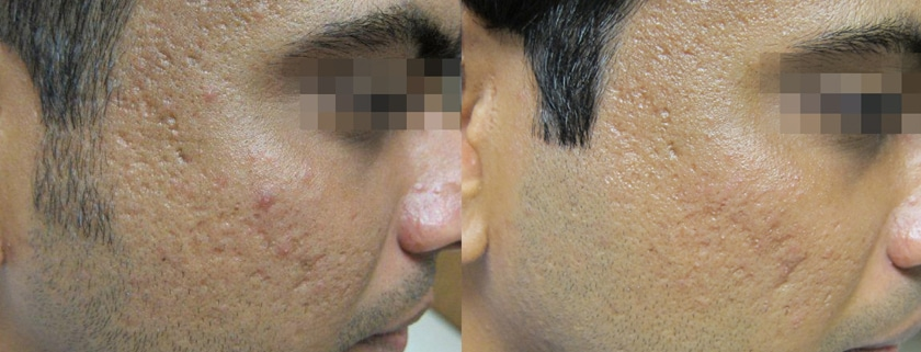 scar removal montreal
