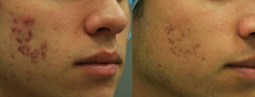 acne scar removal montreal
