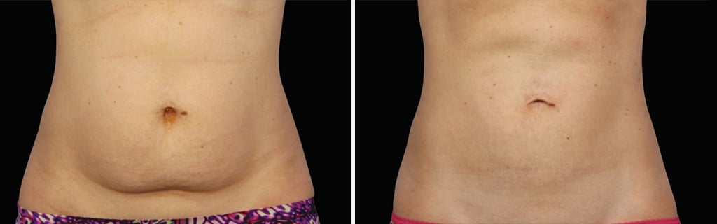 Before-After Impact of Coolsculpting Session