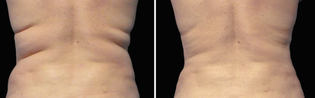 Results of Coolsculpting Treatment