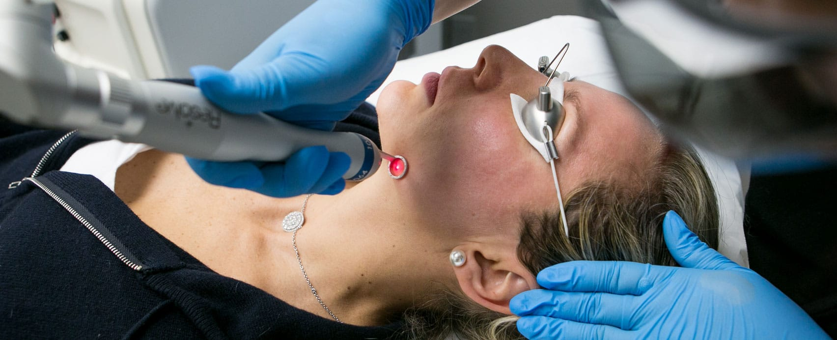 MunkMD Laser Treatments
