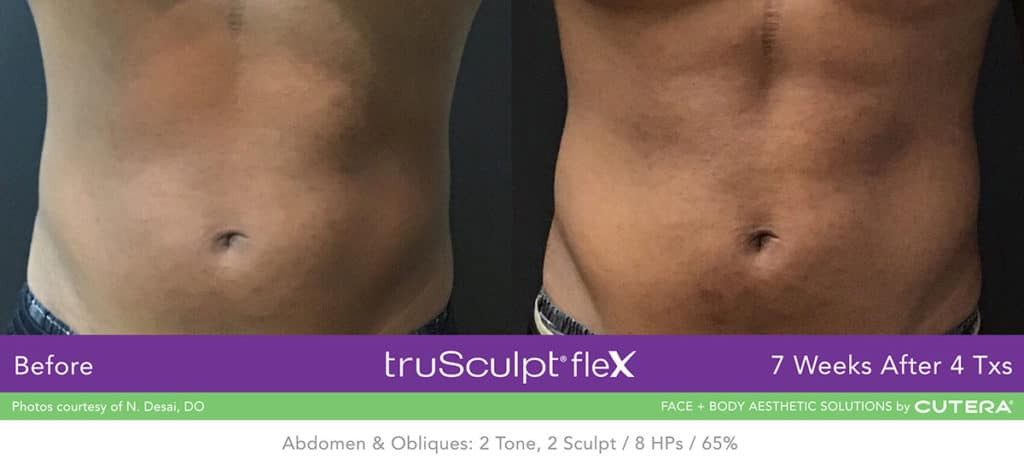 Cutera TruSculpt Flex