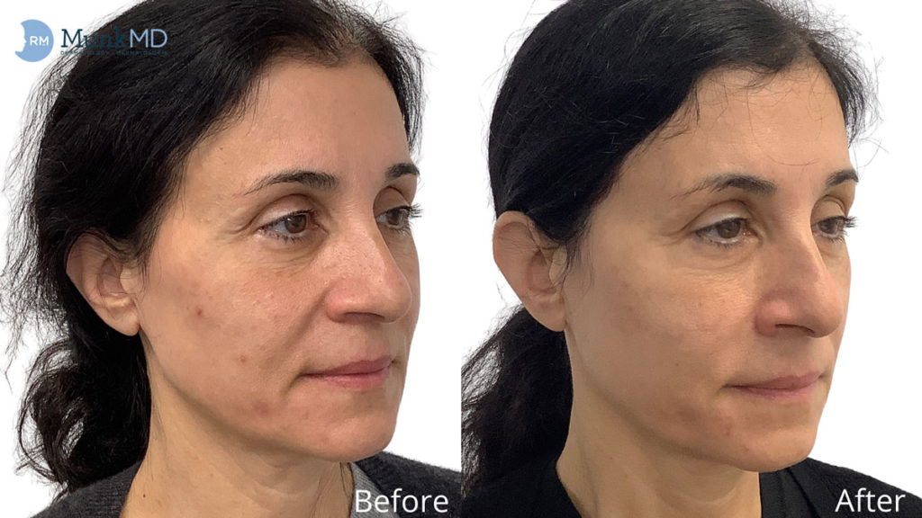 Aesthetic Skin Restoration