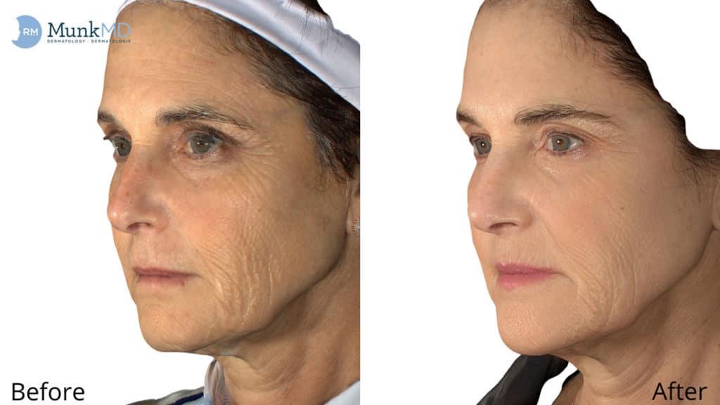Botox 4