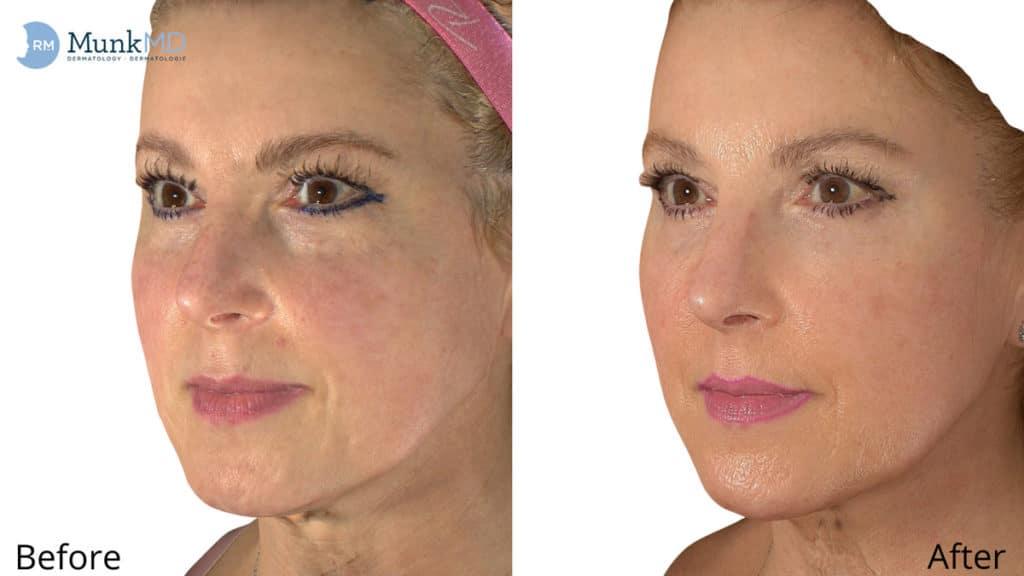 Photo Rejuvenation ULtherapy